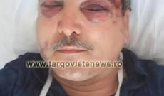 Imagini şocante! Scandal monstru la Nucet! Un bărbat a fost desfigurat în bătaie de patru indivizi