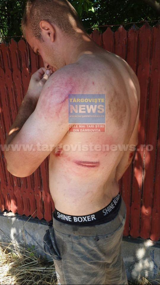 FOTO – VIDEO. Scandal din cauza unui tomberon. Un angajat de la salubritate a fost bătut crunt