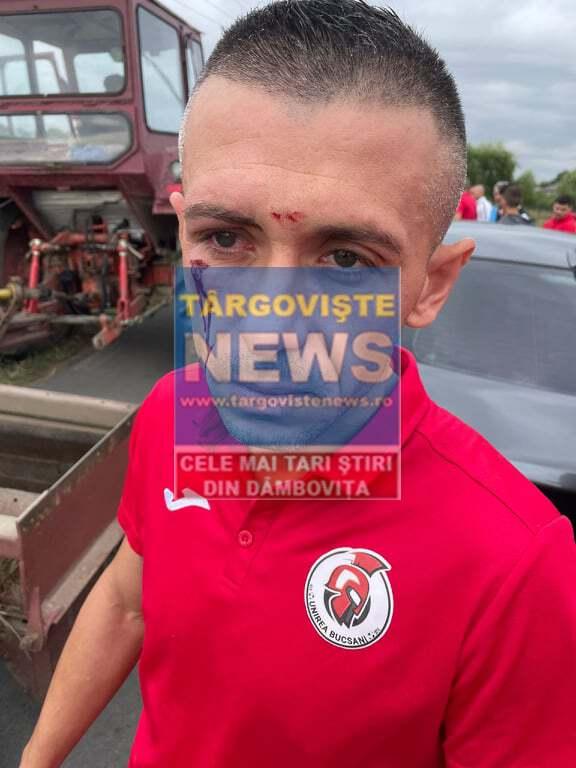 ACUM – Reacția Poliției Dâmbovița în urma agresiunii fotbaliștilor de la Unirea Bucșani