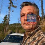 """Senatorul Dragoş Popescu, reacţie după ce activiştii de mediu au fost bătuţi crunt – """"Nu ne mai permitem să tergiversăm înființarea """"DNA-ului Pădurilor"""""""